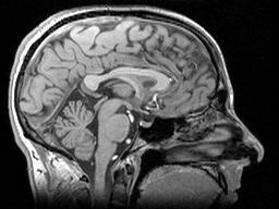 TRACK-HD used powerful MRI scanners to obtain detailed images of volunteers' brains
