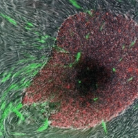 'Induced pluripotent stem cells' in green and red, growing out of surrounding skin cells