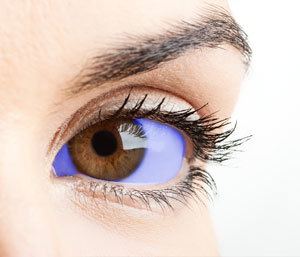 As shown in this artist's impression, methylene blue stains the whites of the eyes blue. That could cause problems testing the drug because of the placebo effect.