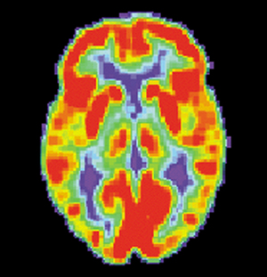 FDG-PET scans enable us to see how much sugar each part of the brain is using. This is a scan of a healthy brain. The red areas are consuming the most sugar.