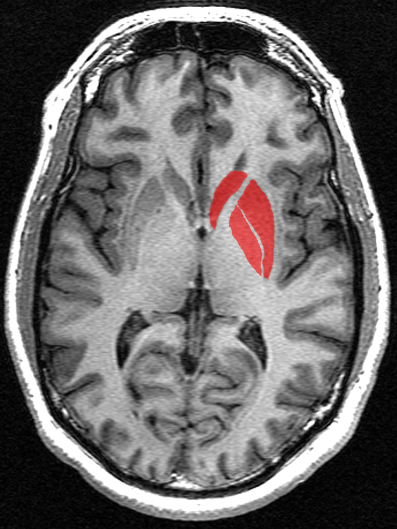 The basal ganglia (in red) are a set of structures deep under the surface of the brain.  These brain regions have long been known to suffer the most damage in the course of HD.