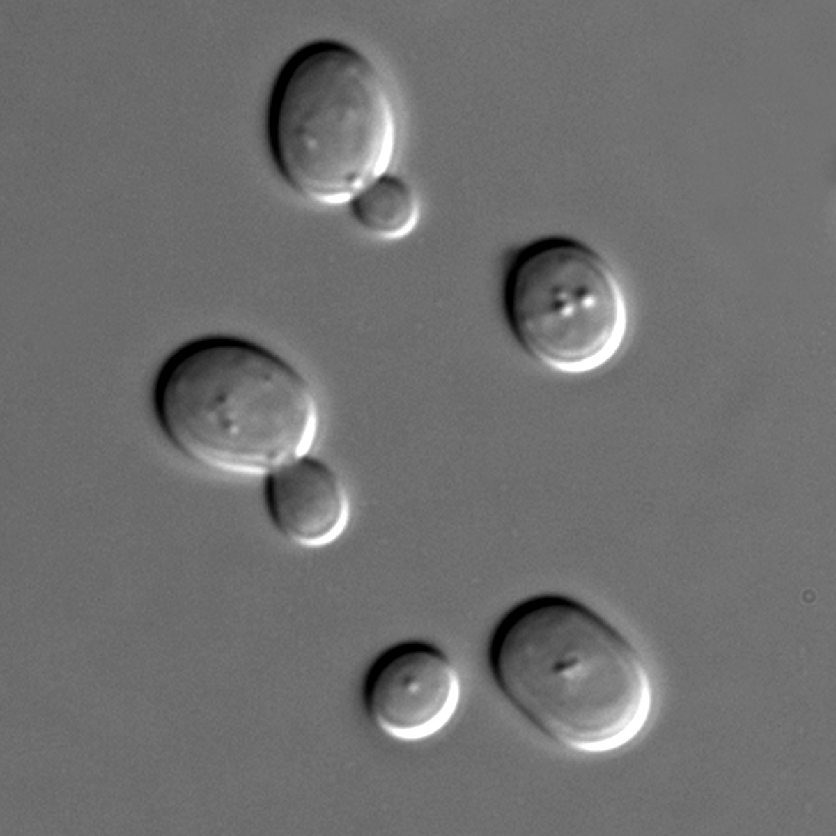Tiny yeast cells helped Giorgini and colleagues find proteins that protect cells from the mutant huntingtin protein.
