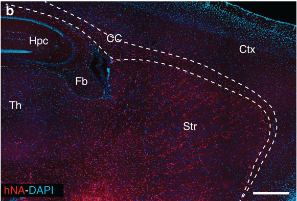In this image, taken from the original study, each red dot is a human glial cell in an adult mouse brain - the text and lines indicate different brain regions.