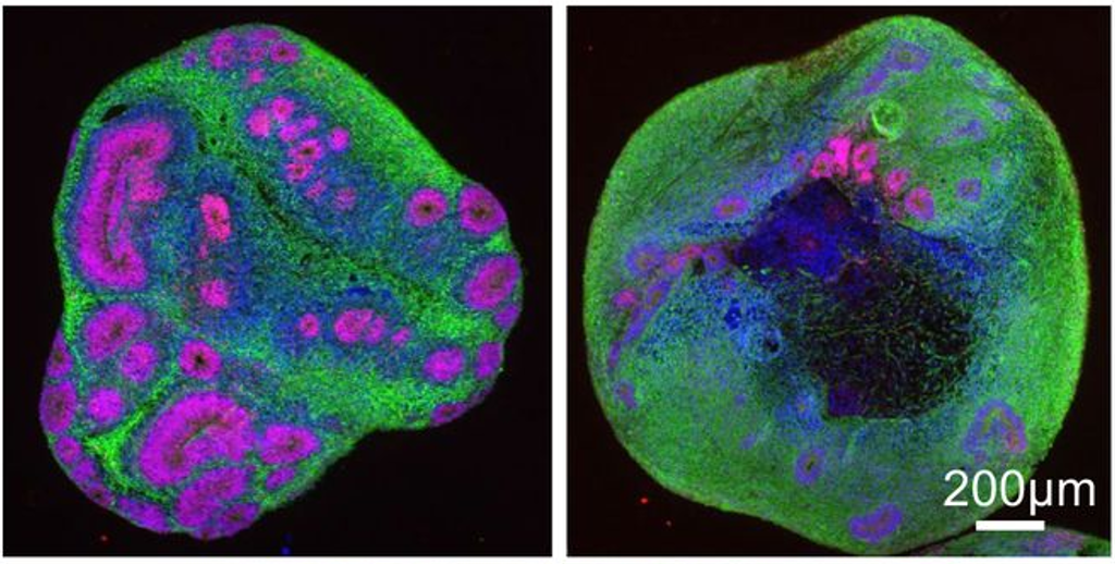 Recent advancements have allowed scientists to grow neurons in 3D, modeling a minibrain. In this study, juvenile-onset HD minibrains (right) were found to have fewer and smaller internal structures, shown here in pink, compared to organoids representing someone without HD (left).