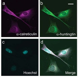 In this microscope image from Truant's lab, different colors are used to show different parts of the cell.  The nucleus is revealed by a dye called 'Hoechst'.  Huntingtin has been made to glow green, allowing it to be pinpointed in the cell.
